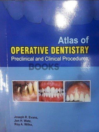 Atlas of operative dentistry Evans