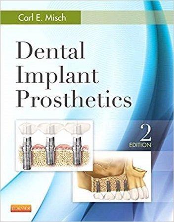 Dental Implant Prosthetics Carl Misch 2nd Edition