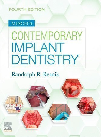 misch contemporary implant dentistry 4th edition