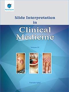 SLIDE Interpretation in Clinical Medicine Volume 4